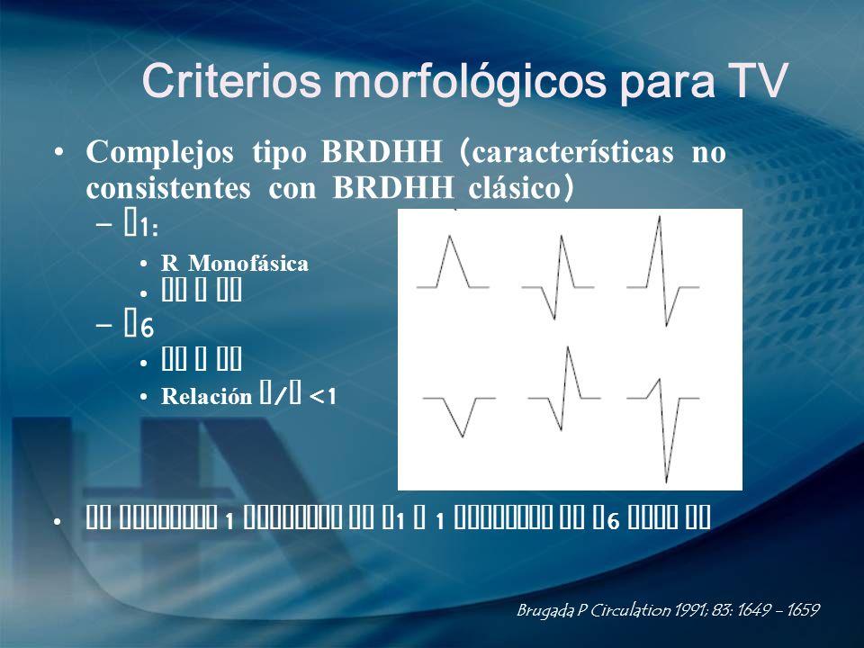Criterios morfológicos para TV Complejos tipo BRDHH ( características no consistentes con BRDHH clásico ) – V 1: R Monofásica QR o RS – V 6 QS o QR Re