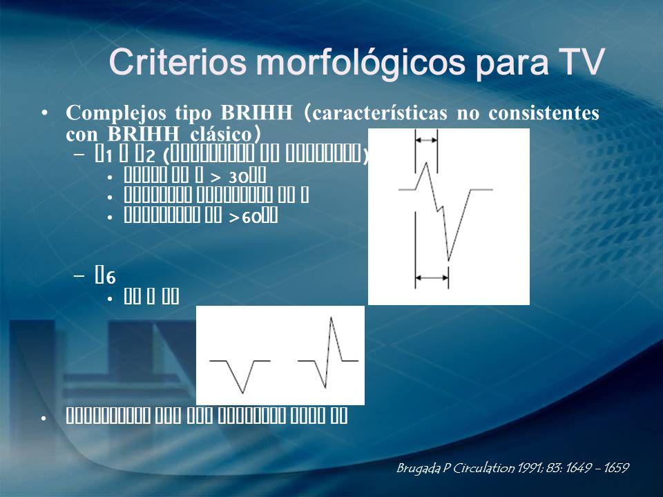 Criterios morfológicos para TV Complejos tipo BRIHH ( características no consistentes con BRIHH clásico ) – V 1 o V 2 ( Criterios de Kindwall ): Ancho
