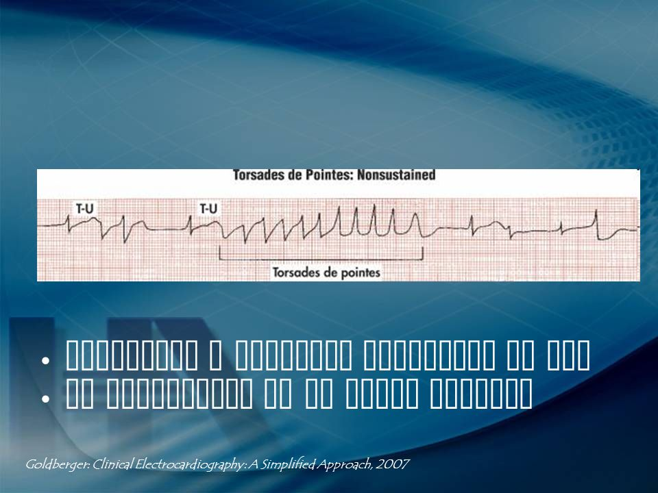 Polaridad y amplitud cambiante de QRS QT prolongado en el ritmo sinusal Goldberger: Clinical Electrocardiography: A Simplified Approach, 2007