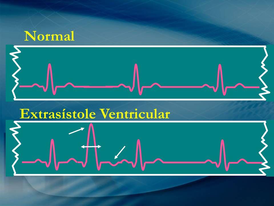 Extrasístole Ventricular Normal