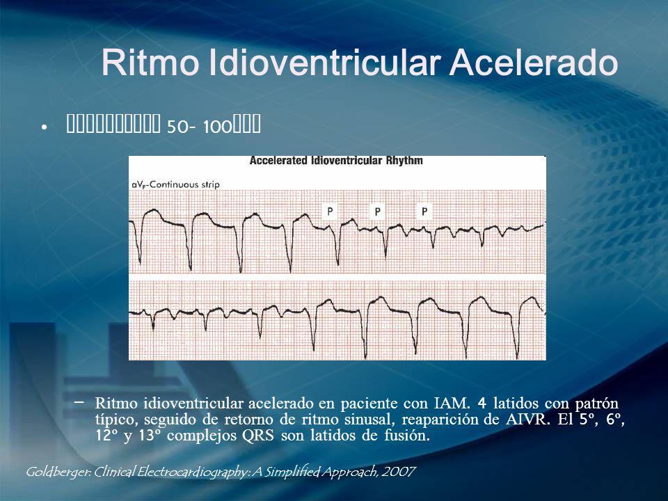 Ritmo Idioventricular Acelerado Frecuencia 50- 100 lpm – Ritmo idioventricular acelerado en paciente con IAM. 4 latidos con patrón típico, seguido de