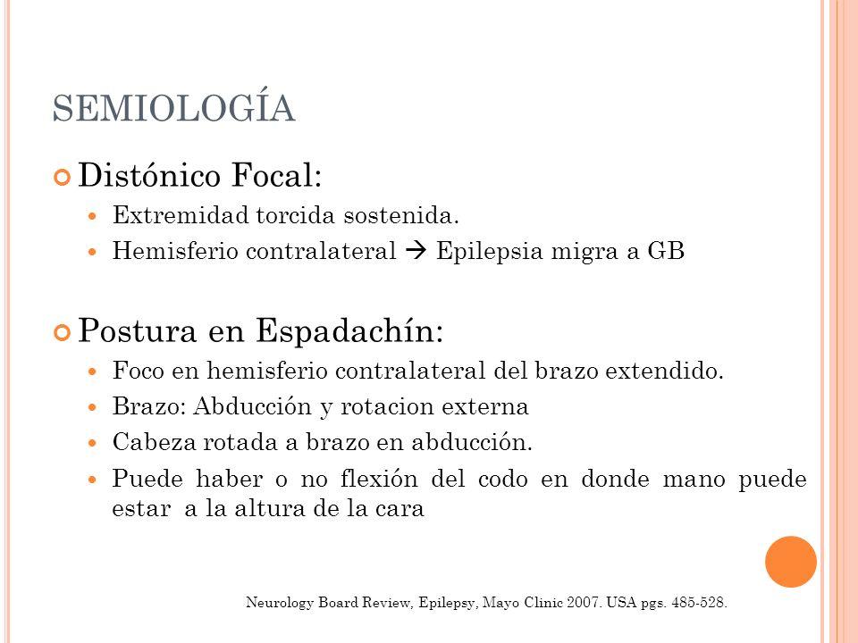 SEMIOLOGÍA Distónico Focal: Extremidad torcida sostenida. Hemisferio contralateral Epilepsia migra a GB Postura en Espadachín: Foco en hemisferio cont