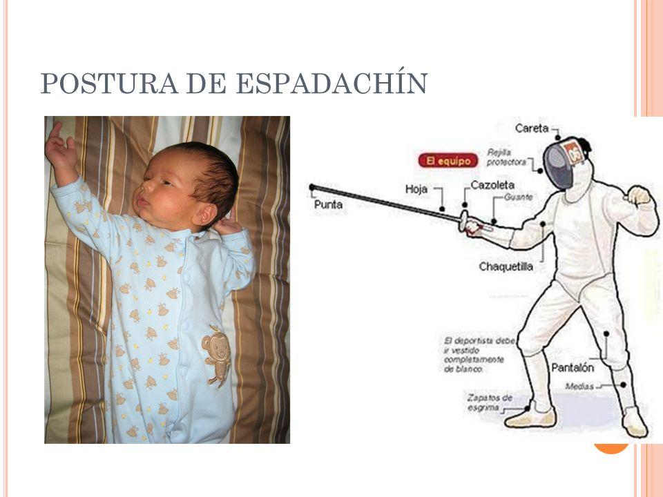 POSTURA DE ESPADACHÍN