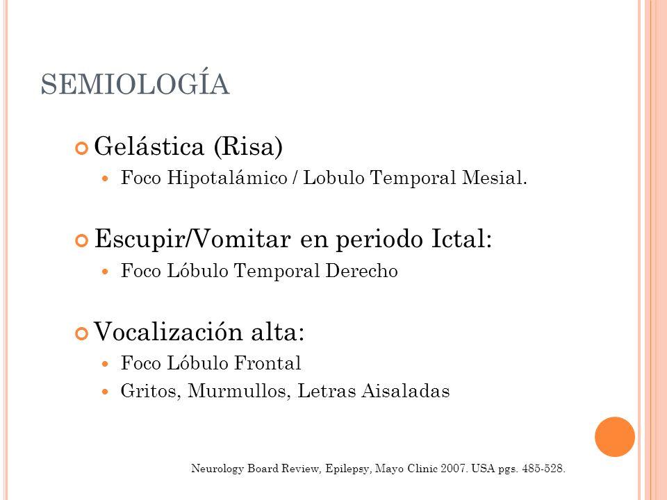SEMIOLOGÍA Gelástica (Risa) Foco Hipotalámico / Lobulo Temporal Mesial. Escupir/Vomitar en periodo Ictal: Foco Lóbulo Temporal Derecho Vocalización al