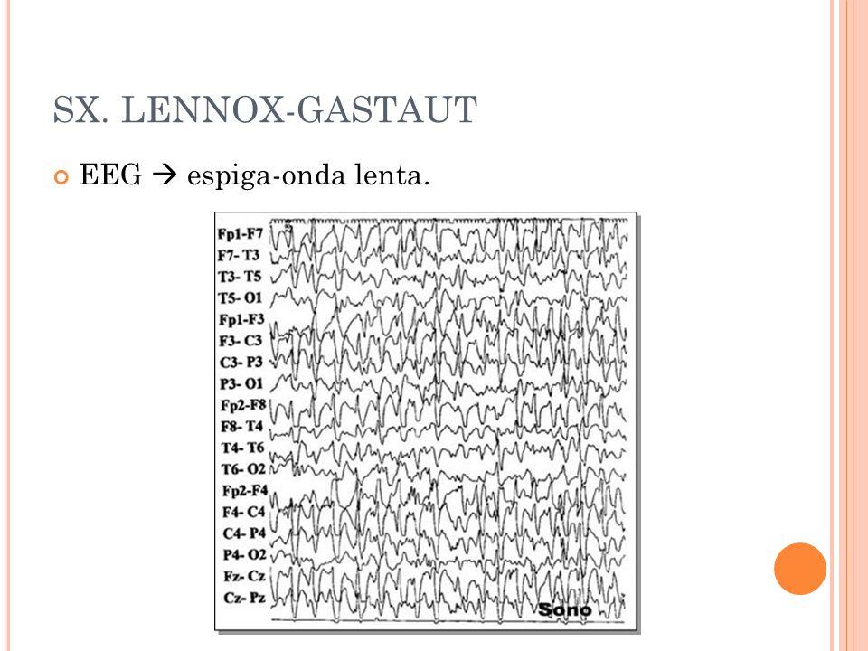 SX. LENNOX-GASTAUT EEG espiga-onda lenta.