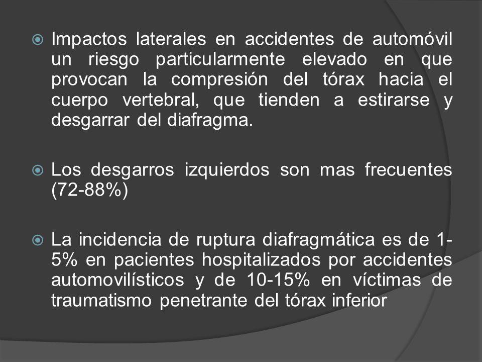 Impactos laterales en accidentes de automóvil un riesgo particularmente elevado en que provocan la compresión del tórax hacia el cuerpo vertebral, que