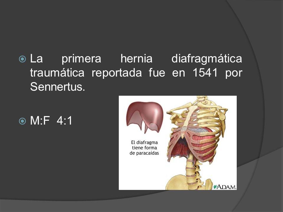 La primera hernia diafragmática traumática reportada fue en 1541 por Sennertus. M:F 4:1