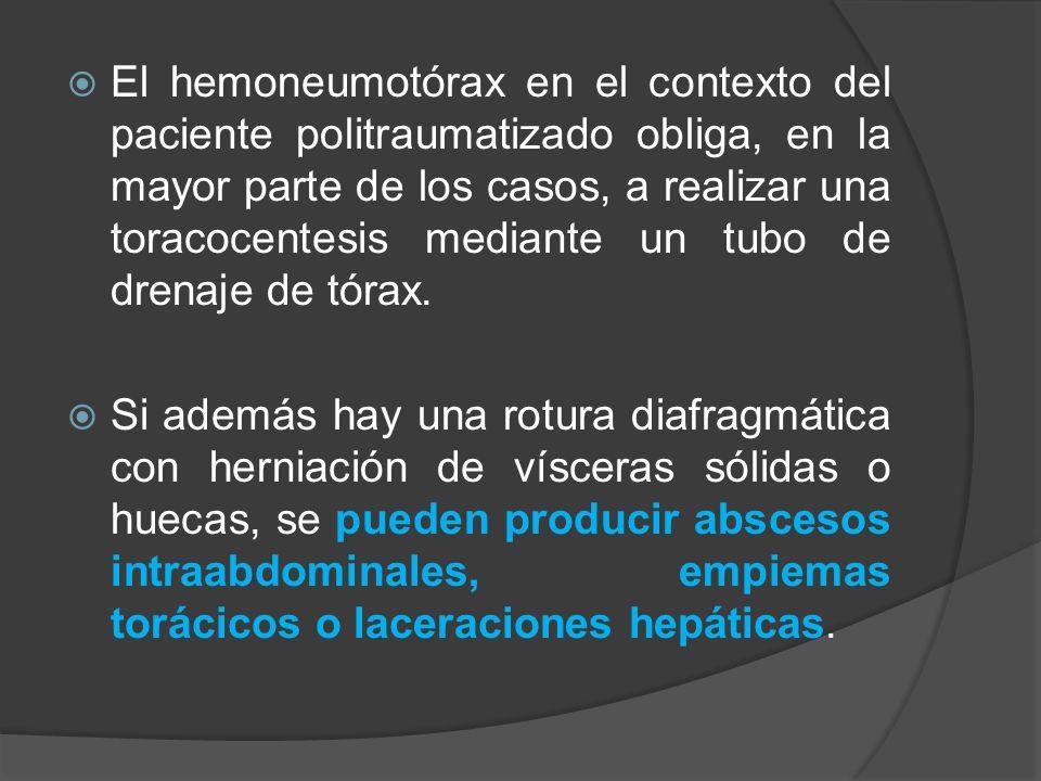 El hemoneumotórax en el contexto del paciente politraumatizado obliga, en la mayor parte de los casos, a realizar una toracocentesis mediante un tubo