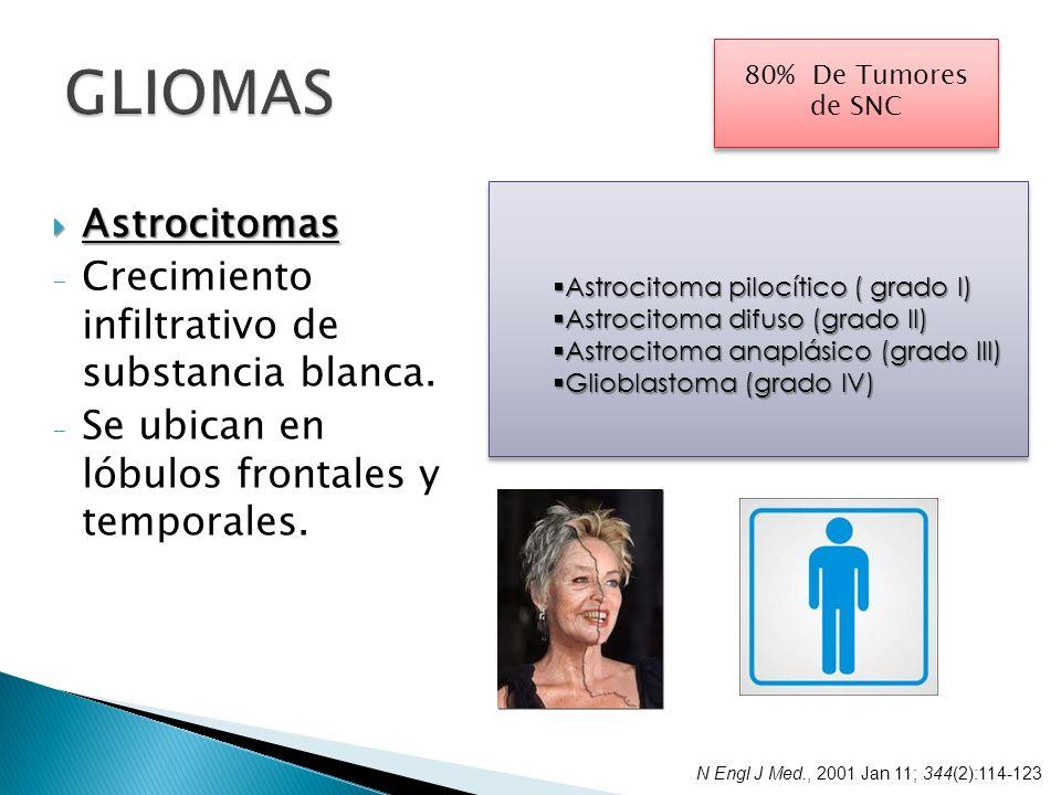 Astrocitomas Astrocitomas - Crecimiento infiltrativo de substancia blanca. - Se ubican en lóbulos frontales y temporales. 80% De Tumores de SNC Astroc