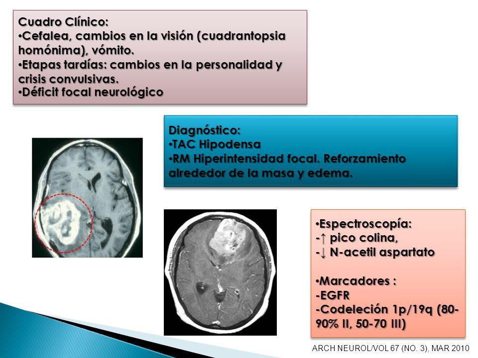 Cuadro Clínico: Cefalea, cambios en la visión (cuadrantopsia homónima), vómito. Cefalea, cambios en la visión (cuadrantopsia homónima), vómito. Etapas