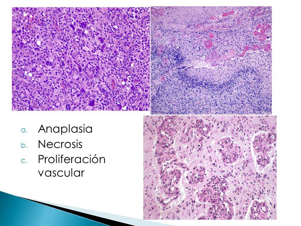a. Anaplasia b. Necrosis c. Proliferación vascular