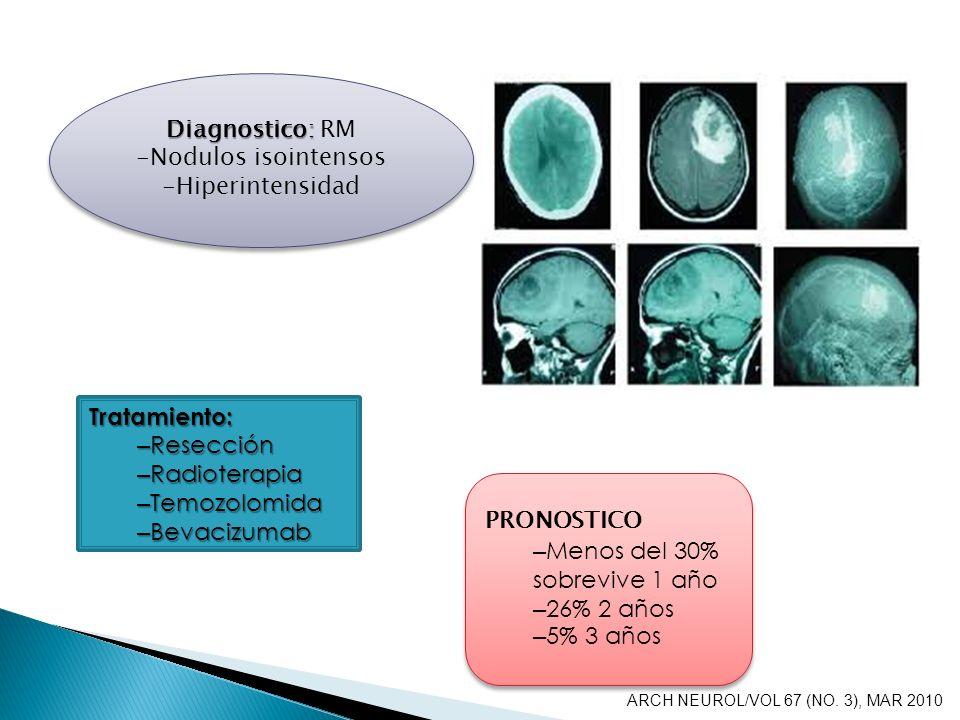 Diagnostico: Diagnostico: RM -Nodulos isointensos -Hiperintensidad Diagnostico: Diagnostico: RM -Nodulos isointensos -Hiperintensidad Tratamiento: – R