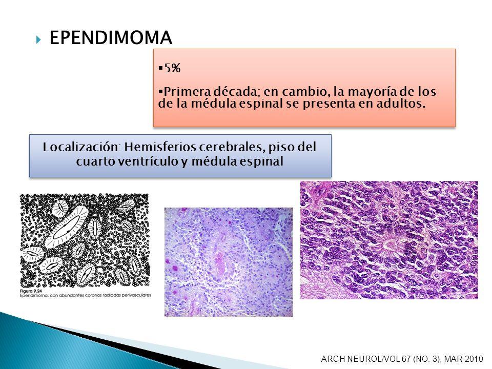 EPENDIMOMA 5% Primera década; en cambio, la mayoría de los de la médula espinal se presenta en adultos. 5% Primera década; en cambio, la mayoría de lo
