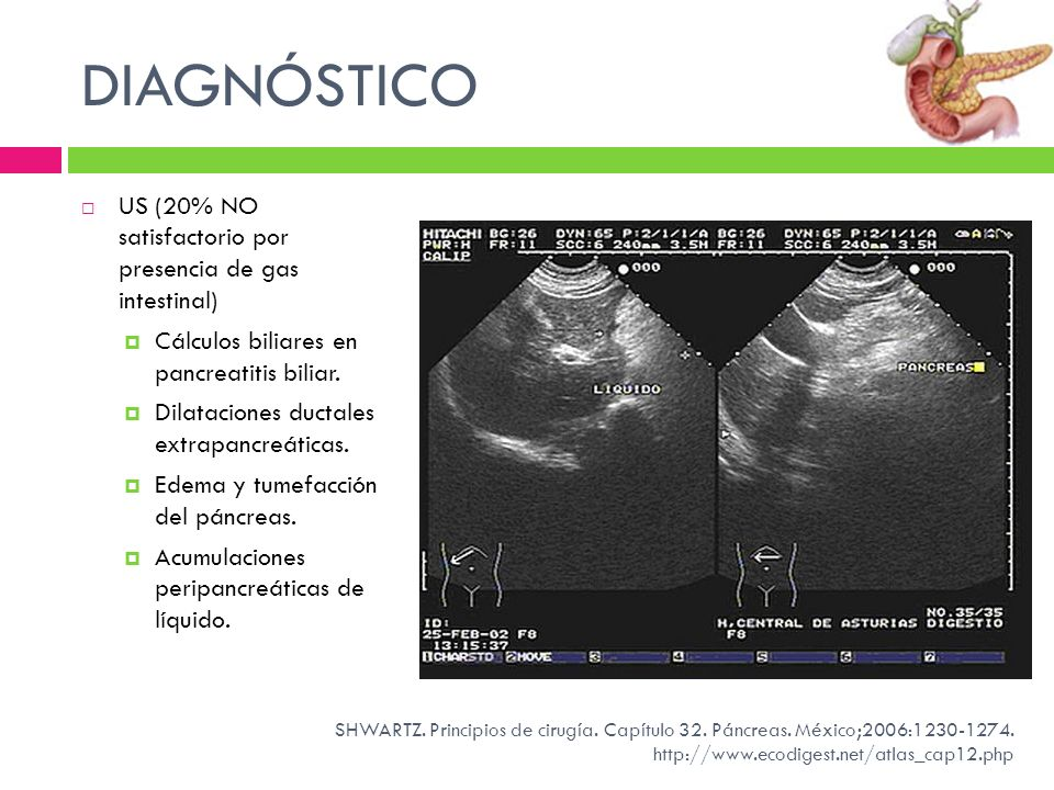 DIAGNÓSTICO US (20% NO satisfactorio por presencia de gas intestinal) Cálculos biliares en pancreatitis biliar. Dilataciones ductales extrapancreática