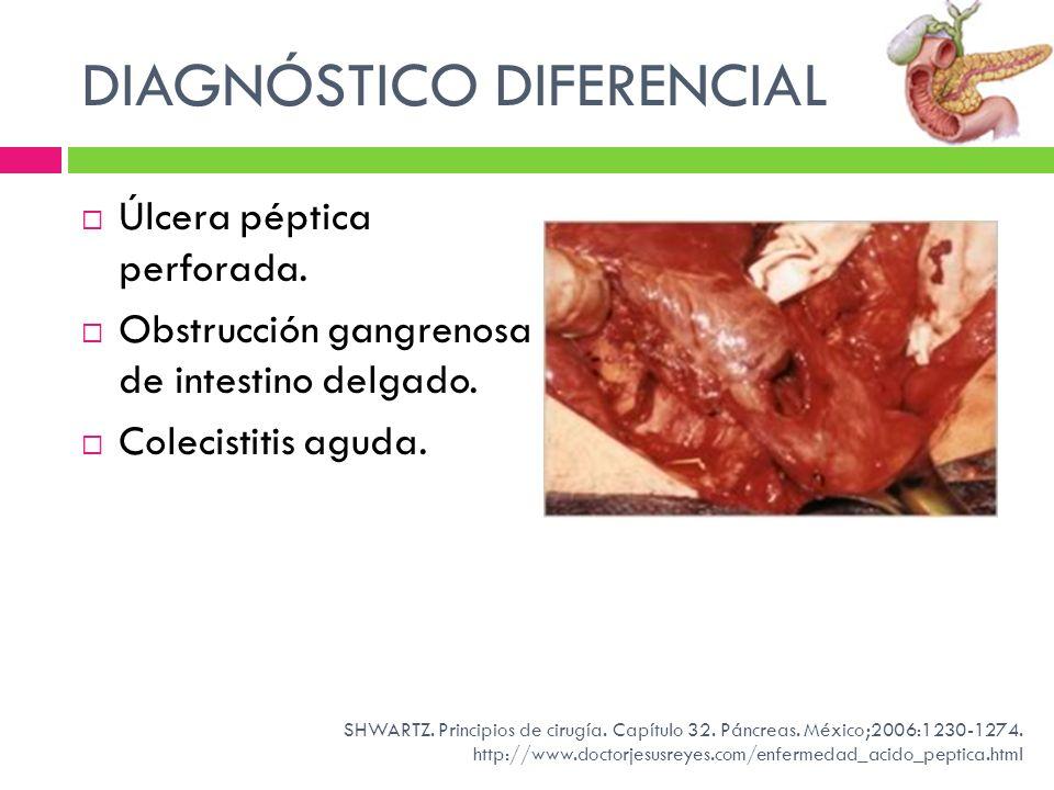 DIAGNÓSTICO DIFERENCIAL Úlcera péptica perforada. Obstrucción gangrenosa de intestino delgado. Colecistitis aguda. SHWARTZ. Principios de cirugía. Cap