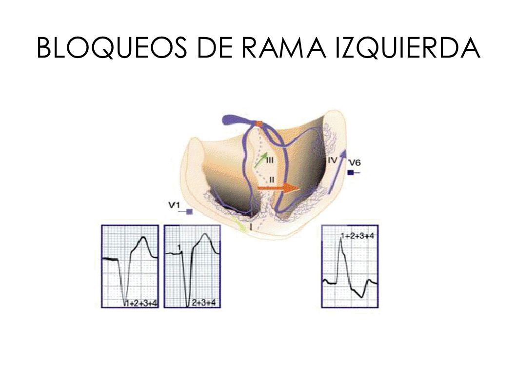 BLOQUEOS DE RAMA IZQUIERDA