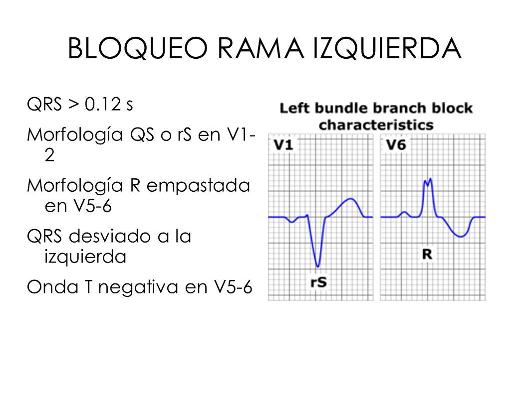 BLOQUEO RAMA IZQUIERDA QRS > 0.12 s Morfología QS o rS en V1- 2 Morfología R empastada en V5-6 QRS desviado a la izquierda Onda T negativa en V5-6