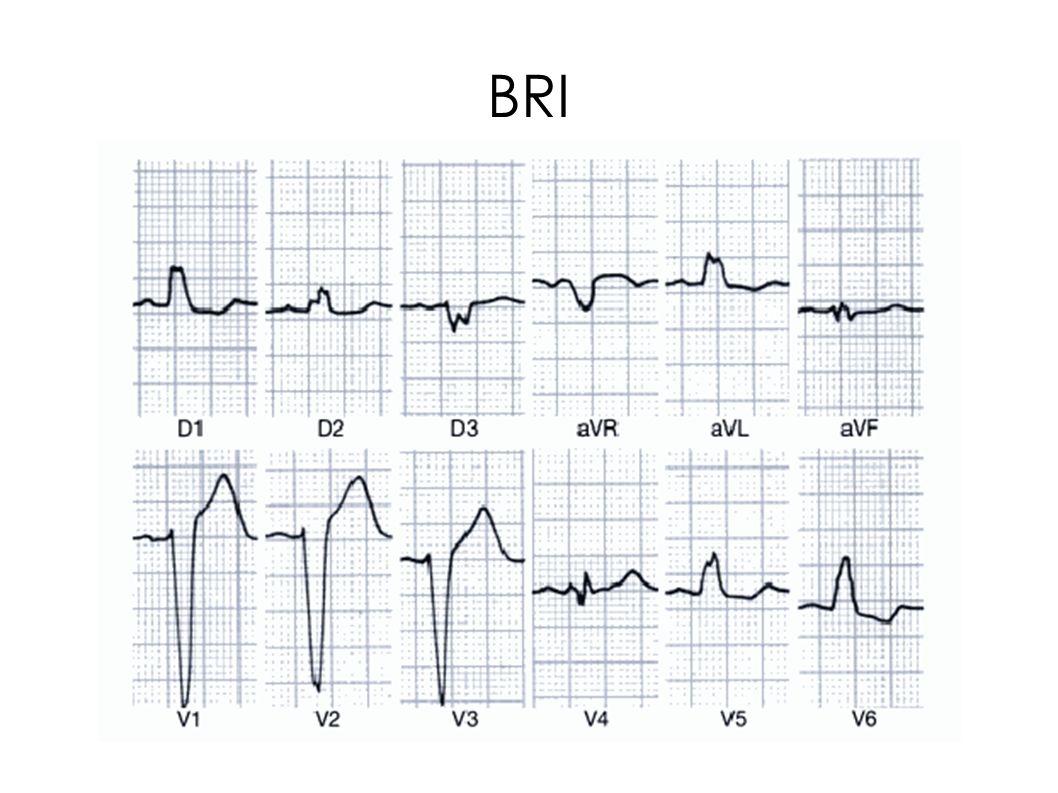 Hemibloqueo anterior de rama izquierda (HARI) Se impide la entrada directa de los impulsos eléctricos en la pared anterior y lateral del VI.