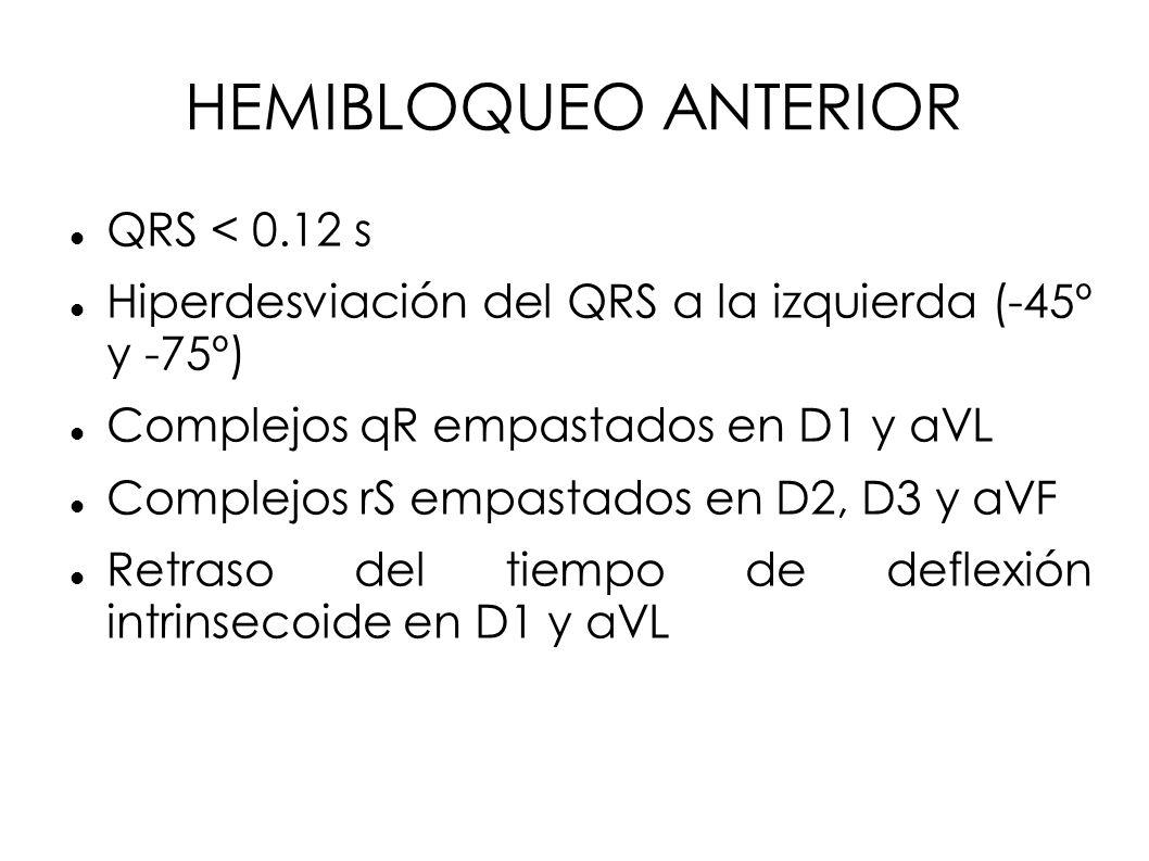 HEMIBLOQUEO ANTERIOR QRS < 0.12 s Hiperdesviación del QRS a la izquierda (-45º y -75º) Complejos qR empastados en D1 y aVL Complejos rS empastados en