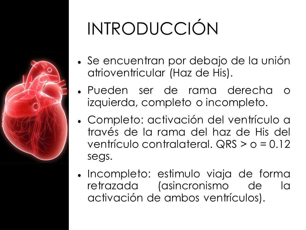 INTRODUCCIÓN Se encuentran por debajo de la unión atrioventricular (Haz de His). Pueden ser de rama derecha o izquierda, completo o incompleto. Comple