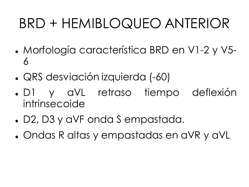 BRD + HEMIBLOQUEO ANTERIOR Morfología característica BRD en V1-2 y V5- 6 QRS desviación izquierda (-60) D1 y aVL retraso tiempo deflexión intrinsecoid