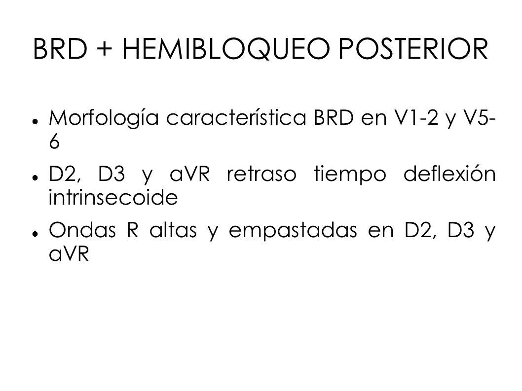 BRD + HEMIBLOQUEO POSTERIOR Morfología característica BRD en V1-2 y V5- 6 D2, D3 y aVR retraso tiempo deflexión intrinsecoide Ondas R altas y empastad