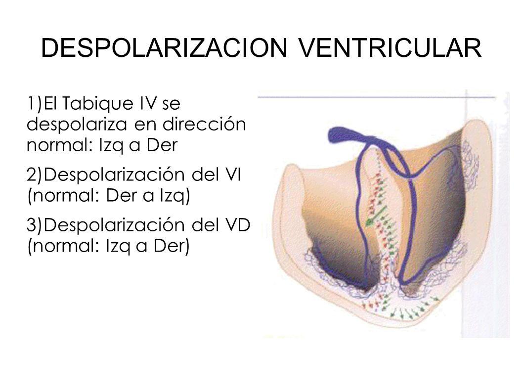 DESPOLARIZACION VENTRICULAR 1)El Tabique IV se despolariza en dirección normal: Izq a Der 2)Despolarización del VI (normal: Der a Izq) 3)Despolarizaci