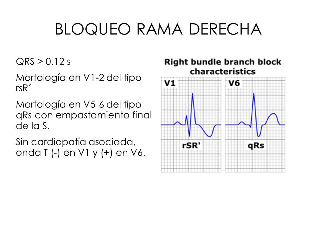 BLOQUEO RAMA DERECHA QRS > 0.12 s Morfología en V1-2 del tipo rsR´ Morfología en V5-6 del tipo qRs con empastamiento final de la S. Sin cardiopatía as