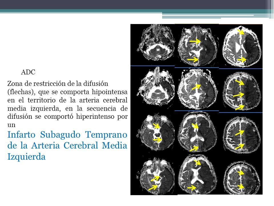 ADC Zona de restricción de la difusión (flechas), que se comporta hipointensa en el territorio de la arteria cerebral media izquierda, en la secuencia