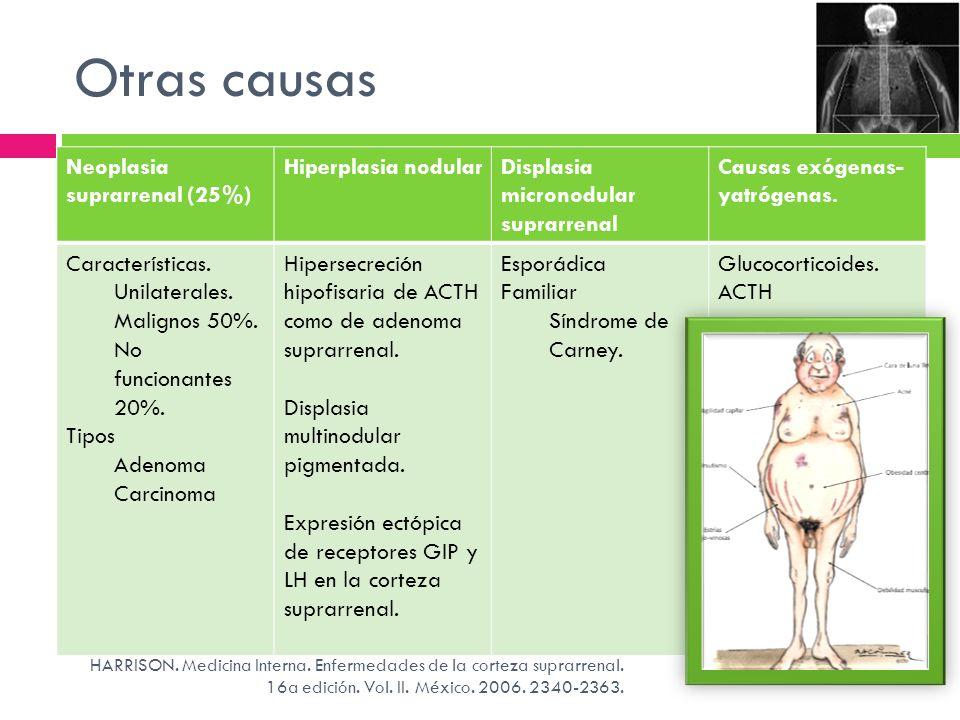 Otras causas HARRISON. Medicina Interna. Enfermedades de la corteza suprarrenal. 16a edición. Vol. II. México. 2006. 2340-2363. Neoplasia suprarrenal