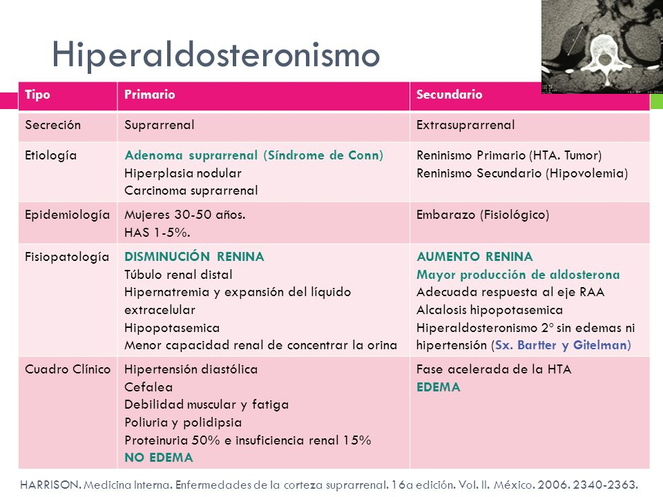 Hiperaldosteronismo HARRISON. Medicina Interna. Enfermedades de la corteza suprarrenal. 16a edición. Vol. II. México. 2006. 2340-2363. TipoPrimarioSec