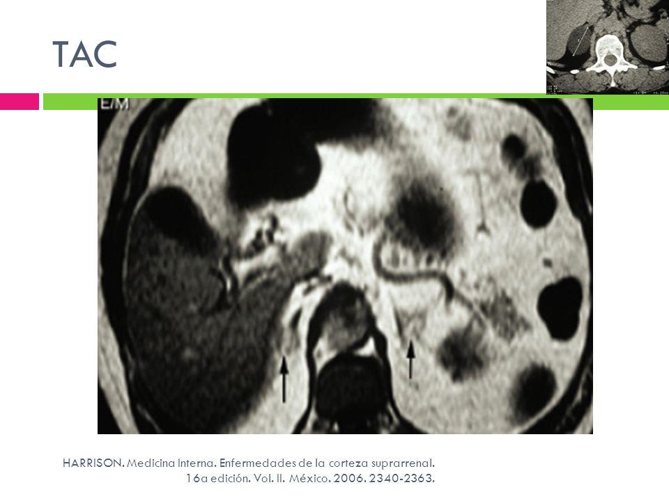 TAC HARRISON. Medicina Interna. Enfermedades de la corteza suprarrenal. 16a edición. Vol. II. México. 2006. 2340-2363.