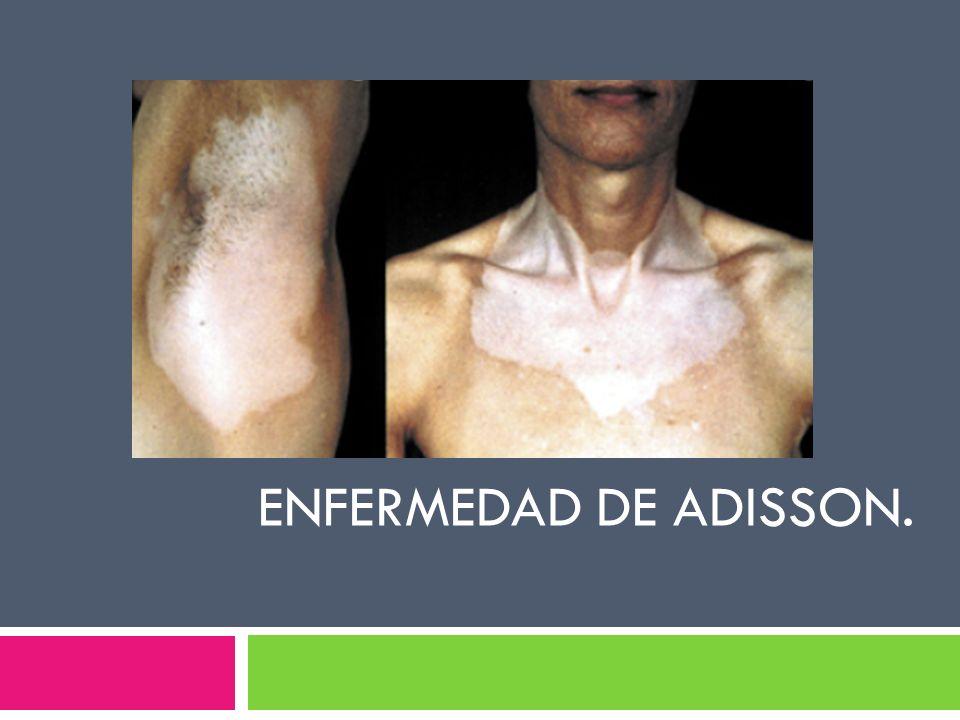 ENFERMEDAD DE ADISSON.