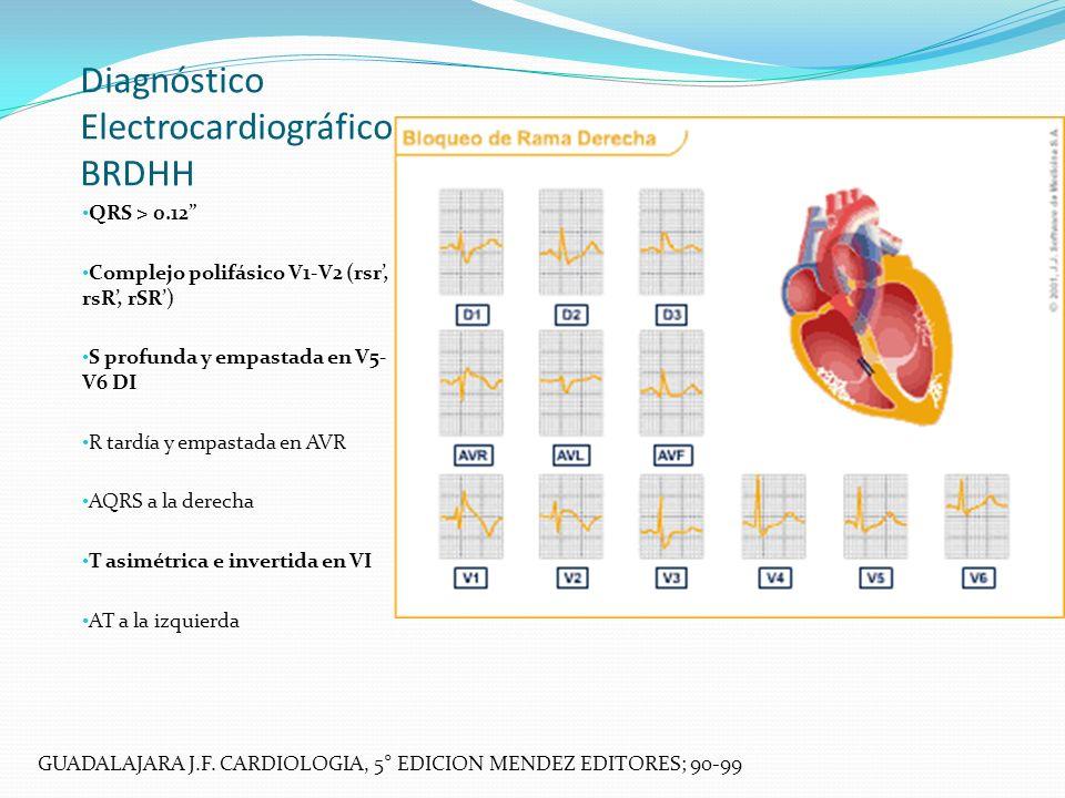 Diagnóstico Electrocardiográfico BRDHH QRS > 0.12 Complejo polifásico V1-V2 (rsr, rsR, rSR) S profunda y empastada en V5- V6 DI R tardía y empastada e