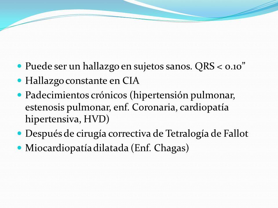 Puede ser un hallazgo en sujetos sanos. QRS < 0.10 Hallazgo constante en CIA Padecimientos crónicos (hipertensión pulmonar, estenosis pulmonar, enf. C