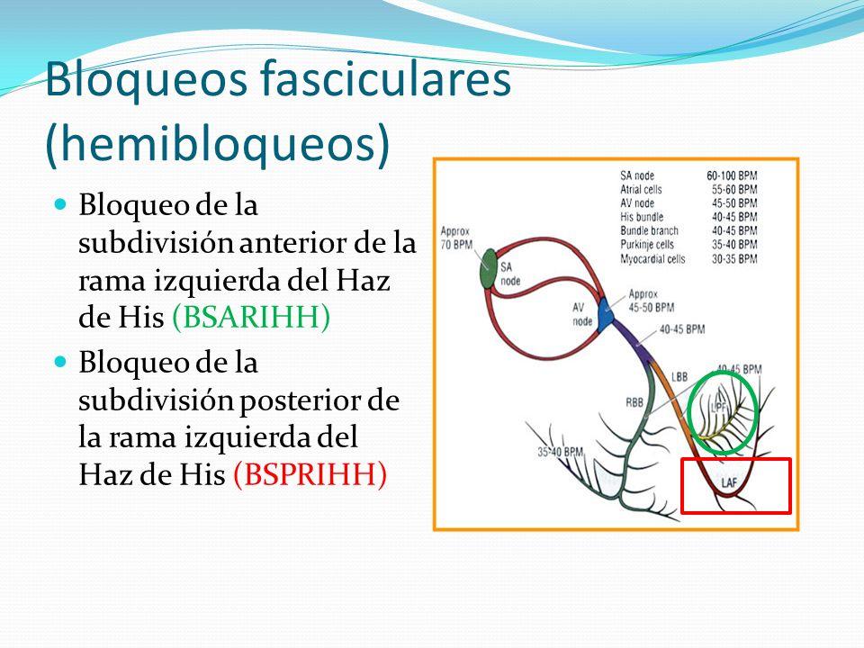Bloqueos fasciculares (hemibloqueos) Bloqueo de la subdivisión anterior de la rama izquierda del Haz de His (BSARIHH) Bloqueo de la subdivisión poster