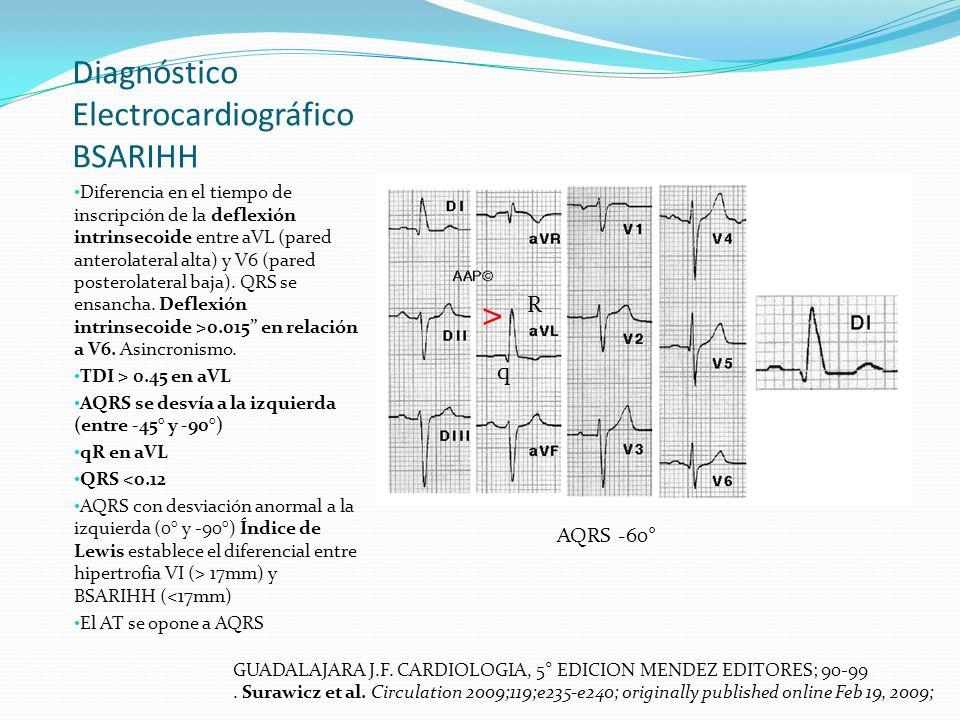 Diagnóstico Electrocardiográfico BSARIHH Diferencia en el tiempo de inscripción de la deflexión intrinsecoide entre aVL (pared anterolateral alta) y V