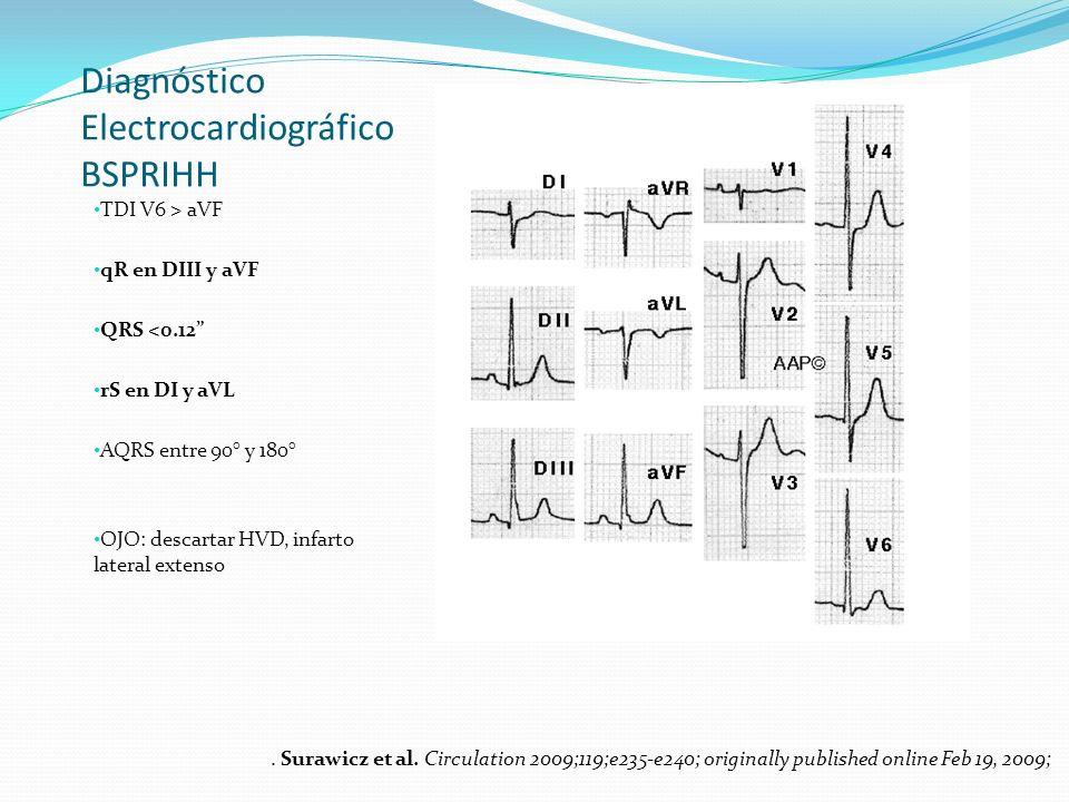 Diagnóstico Electrocardiográfico BSPRIHH TDI V6 > aVF qR en DIII y aVF QRS <0.12 rS en DI y aVL AQRS entre 90° y 180° OJO: descartar HVD, infarto late
