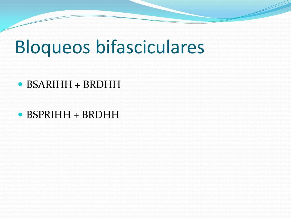 Bloqueos bifasciculares BSARIHH + BRDHH BSPRIHH + BRDHH