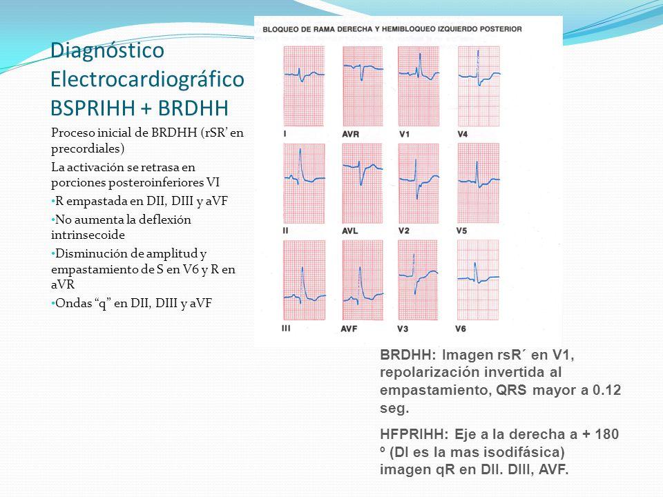 Diagnóstico Electrocardiográfico BSPRIHH + BRDHH Proceso inicial de BRDHH (rSR en precordiales) La activación se retrasa en porciones posteroinferiore
