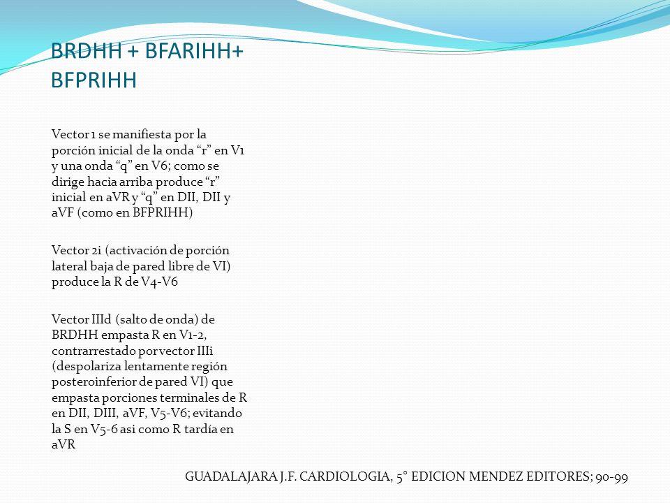BRDHH + BFARIHH+ BFPRIHH Vector 1 se manifiesta por la porción inicial de la onda r en V1 y una onda q en V6; como se dirige hacia arriba produce r in
