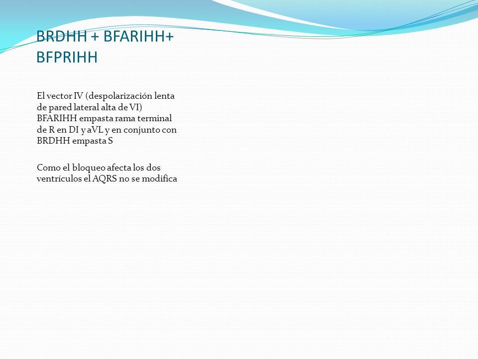 BRDHH + BFARIHH+ BFPRIHH El vector IV (despolarización lenta de pared lateral alta de VI) BFARIHH empasta rama terminal de R en DI y aVL y en conjunto