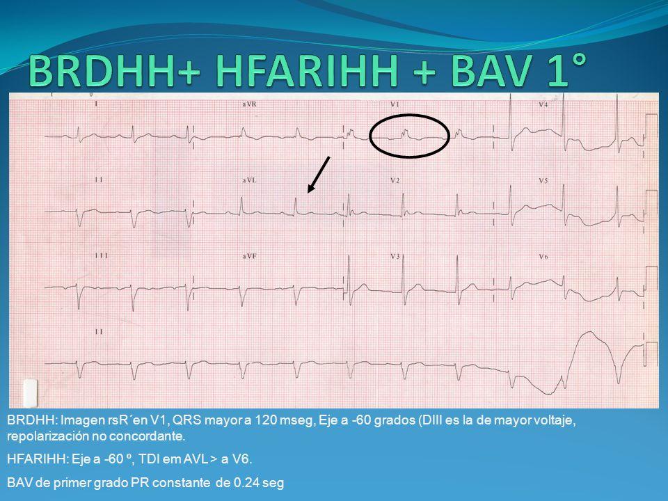 BRDHH: Imagen rsR´en V1, QRS mayor a 120 mseg, Eje a -60 grados (DIII es la de mayor voltaje, repolarización no concordante. HFARIHH: Eje a -60 º, TDI