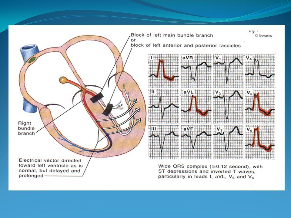 Diagnóstico Electrocardiográfico BRIHH Desaparece el 1er vector septal normal = Ausencia de Q en V5- V6 y de r enV1 y V2 QRS > 0.12 (salto de onda) R ancha, empastada y con muescas V5-V6 S ancha y empastada en V1-V2 AQRS a la izquierda T invertida asimétrica en V5-V6 AT a la derecha, opuesto a AQRS GUADALAJARA J.F.
