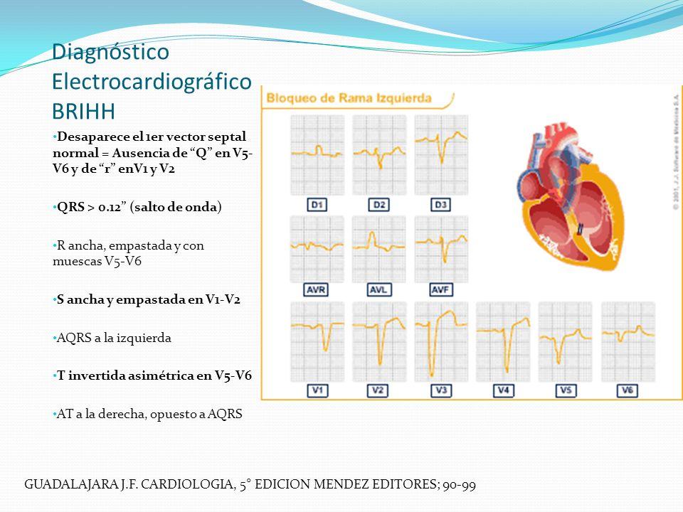 Diagnóstico Electrocardiográfico BRIHH Desaparece el 1er vector septal normal = Ausencia de Q en V5- V6 y de r enV1 y V2 QRS > 0.12 (salto de onda) R