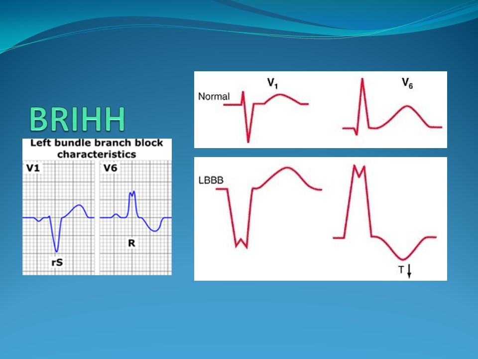 Diagnóstico Electrocardiográfico BSPRIHH TDI V6 > aVF qR en DIII y aVF QRS <0.12 rS en DI y aVL AQRS entre 90° y 180° OJO: descartar HVD, infarto lateral extenso.