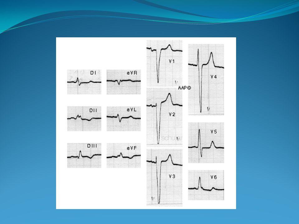 Diagnóstico Electrocardiográfico BSARIHH + BRDHH Bloqueo de rama derecha en V1 complejo rsR El proceso de activación inicial no sufre cambios Vector I septal, Vector 2 pared libre, Vector 3 Salto de onda Ondas R en V1 y V2 y ondas S en V5 y V6, más prominentes y ensanchadas En V1 rotación e AQRS a la izquierda (-45° y 90°) Deflexión intrinsecoide >0.015 en aVL en relación con V6 con R empastada en su rama descendente GUADALAJARA J.F.