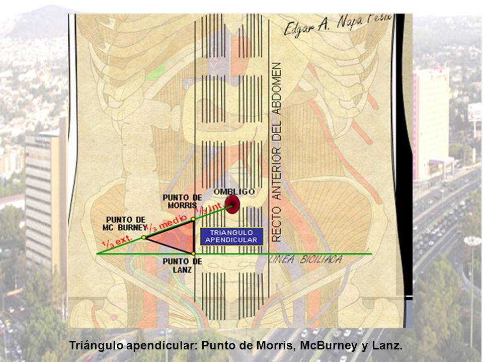 Triángulo apendicular: Punto de Morris, McBurney y Lanz.
