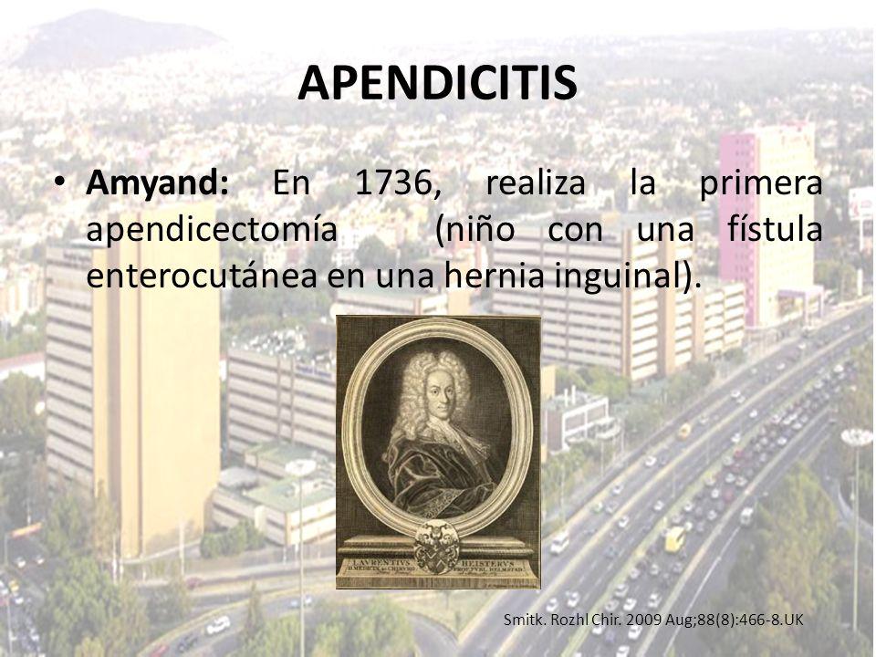 Smitk. Rozhl Chir. 2009 Aug;88(8):466-8.UK APENDICITIS Amyand: En 1736, realiza la primera apendicectomía (niño con una fístula enterocutánea en una h