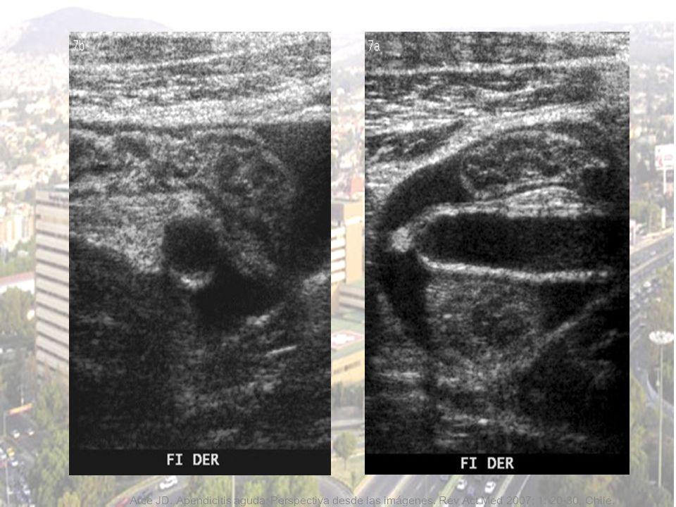 Arce JD. Apendicitis aguda: Perspectiva desde las imágenes. Rev Act Med 2007; 1: 20-30. Chile.